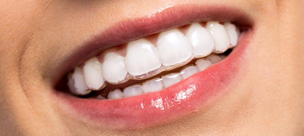 cas de blanchiment des dents