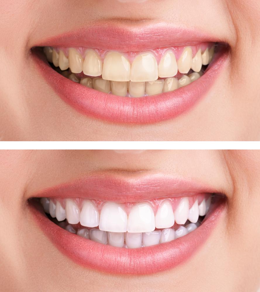 bouts de blanchiment des dents